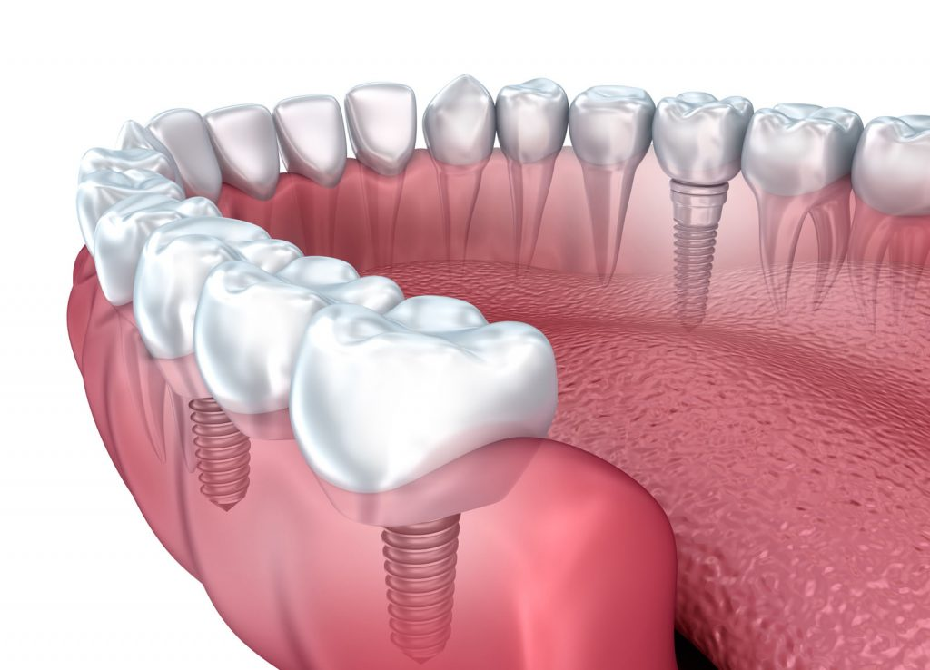 Dental implants quincy